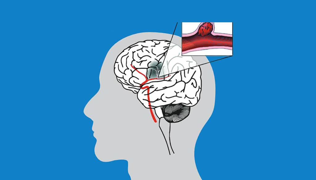 How To Reduce The Risk Of Stroke